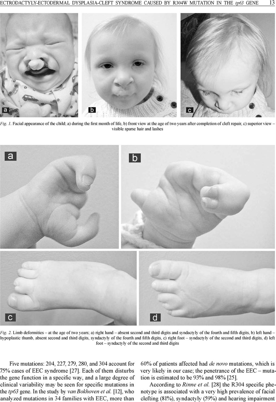 2. Limb deformities at the age of two years; a) right hand absent second and third digits and syndactyly of the fourth and fifth digits, b) left hand hypoplastic thumb, absent second and third