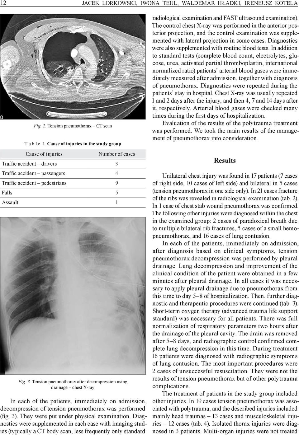 The control chest X ray was performed in the anterior posterior projection, and the control examination was supplemented with lateral projection in some cases.