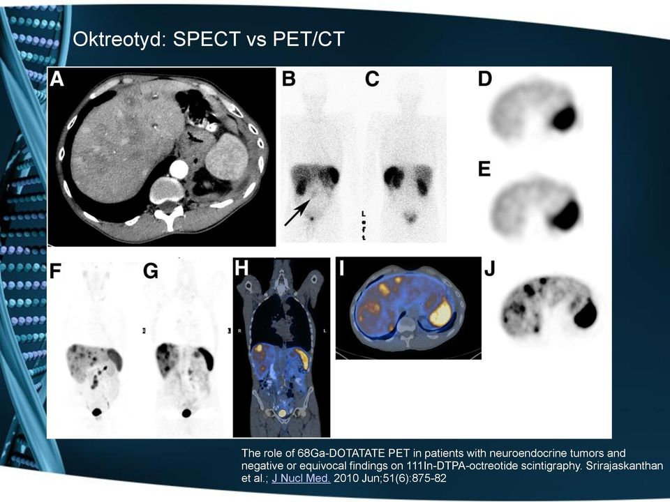 equivocal findings on 111In-DTPA-octreotide scintigraphy.
