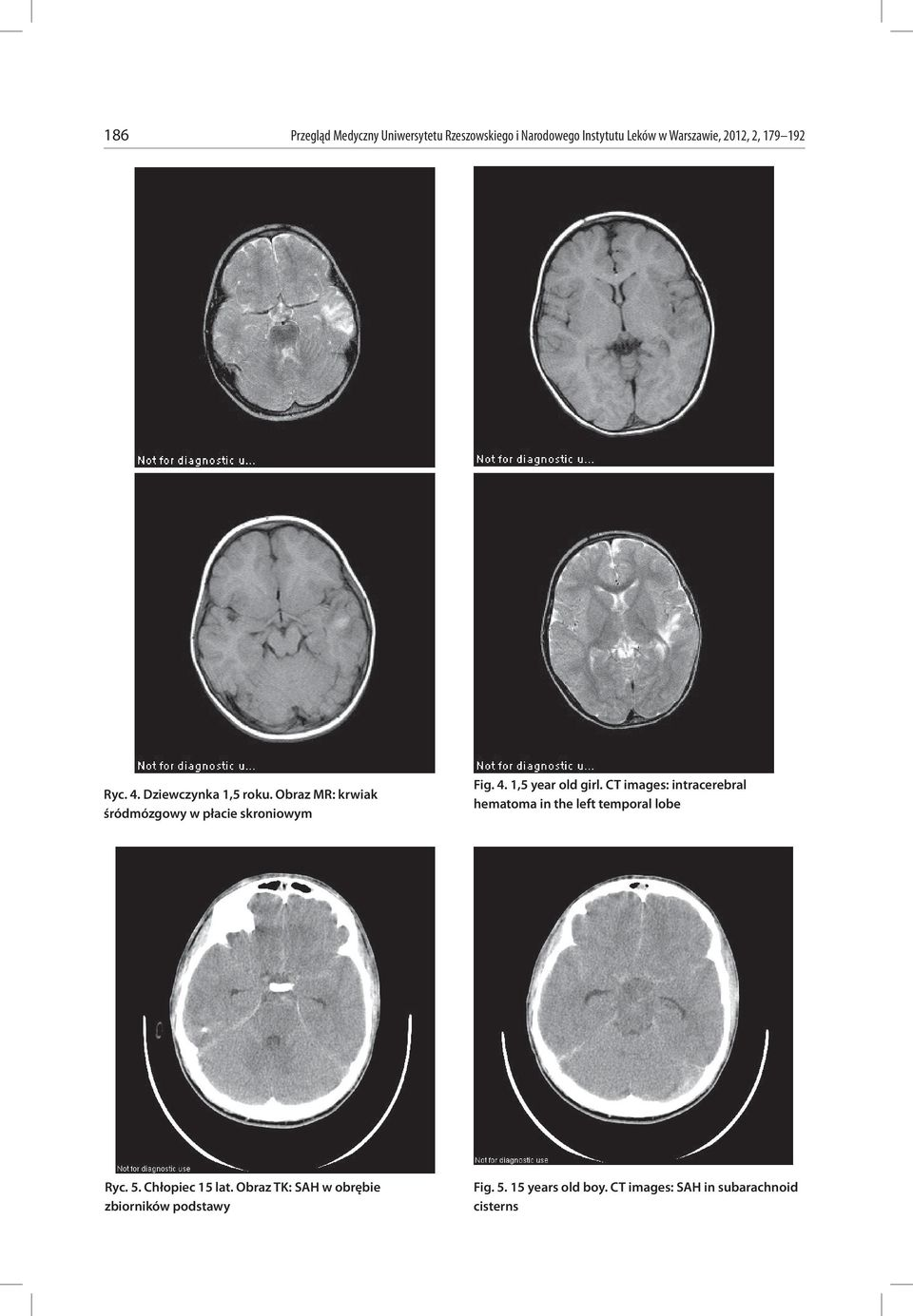 CT images: intracerebral hematoma in the left temporal lobe Ryc. 5. Chłopiec 15 lat.