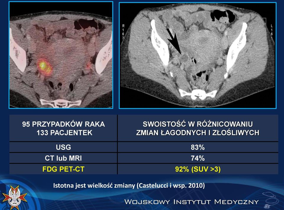 83% CT lub MRI 74% FDG PET-CT 92% (SUV >3)