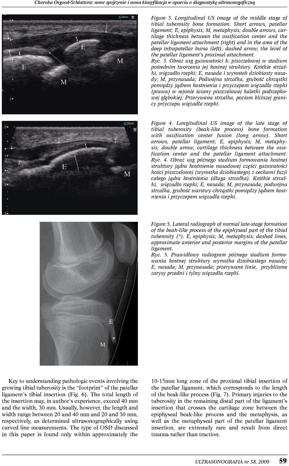 deep infrapatellar bursa (left); dashed arrow, the level of the patellar ligament s proximal attachment. Ryc. 3. Obraz usg guzowatości k.
