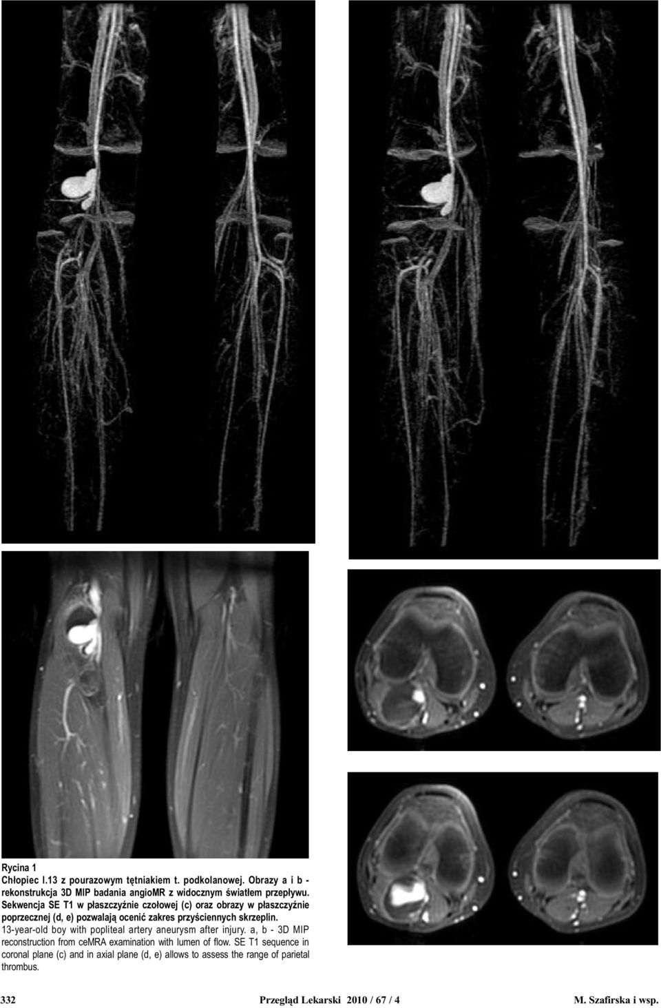 13-year-old boy with popliteal artery aneurysm after injury. a, b - 3D MIP reconstruction from cemra examination with lumen of flow.