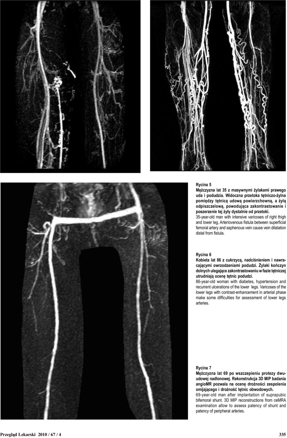 35-year-old man with intensive varicoses of right thigh and lower leg. Arteriovenous fistula between superficial femoral artery and saphenous vein cause vein dilatation distal from fistula.