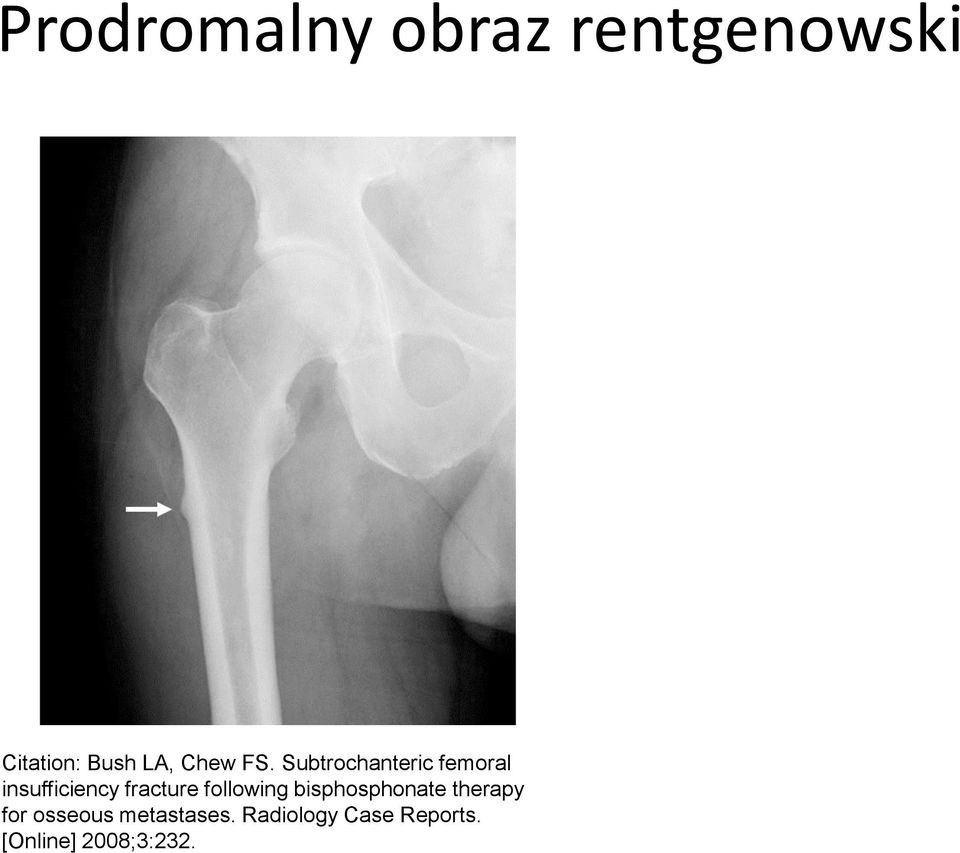 Subtrochanteric femoral insufficiency fracture