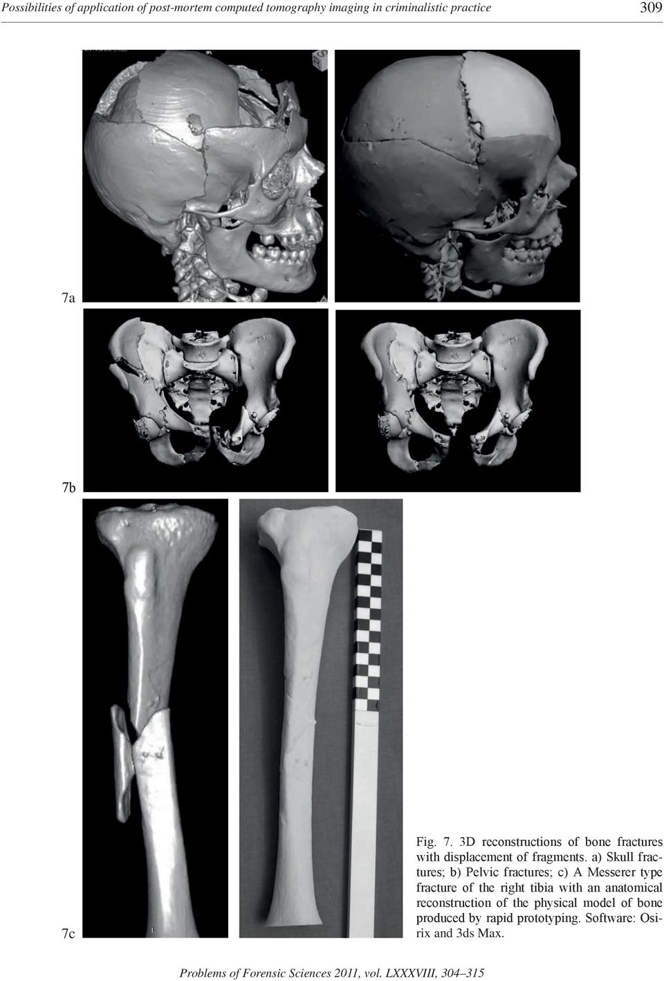 a) Skull fractures; b) Pelvic fractures; c) A Messerer type fracture of the right tibia with an