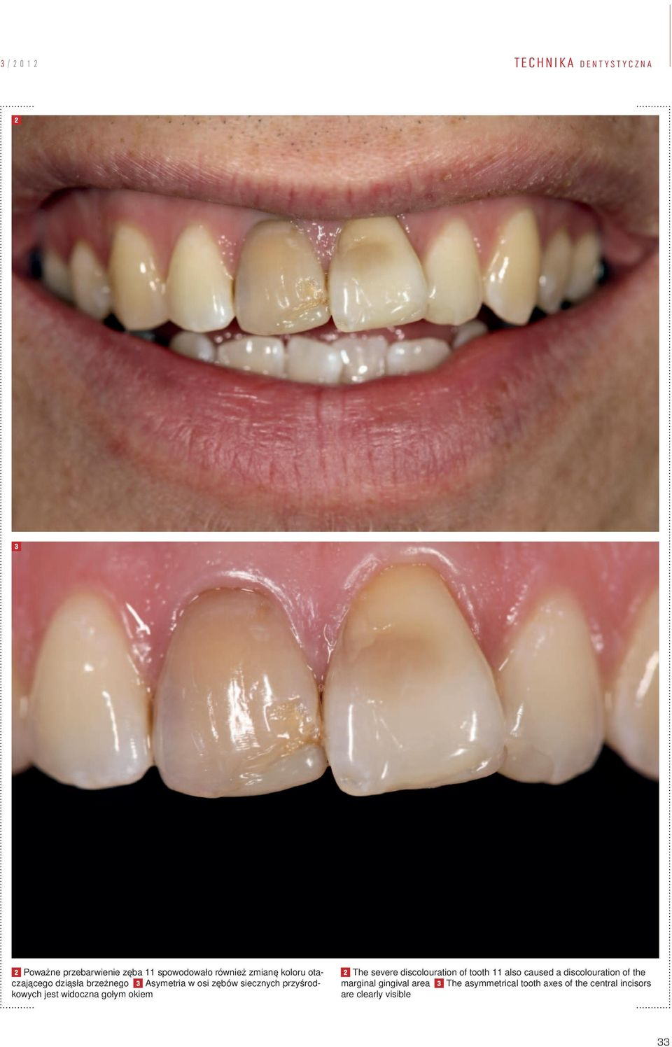 widoczna gołym okiem 2 The severe discolouration of tooth 11 also caused a discolouration of