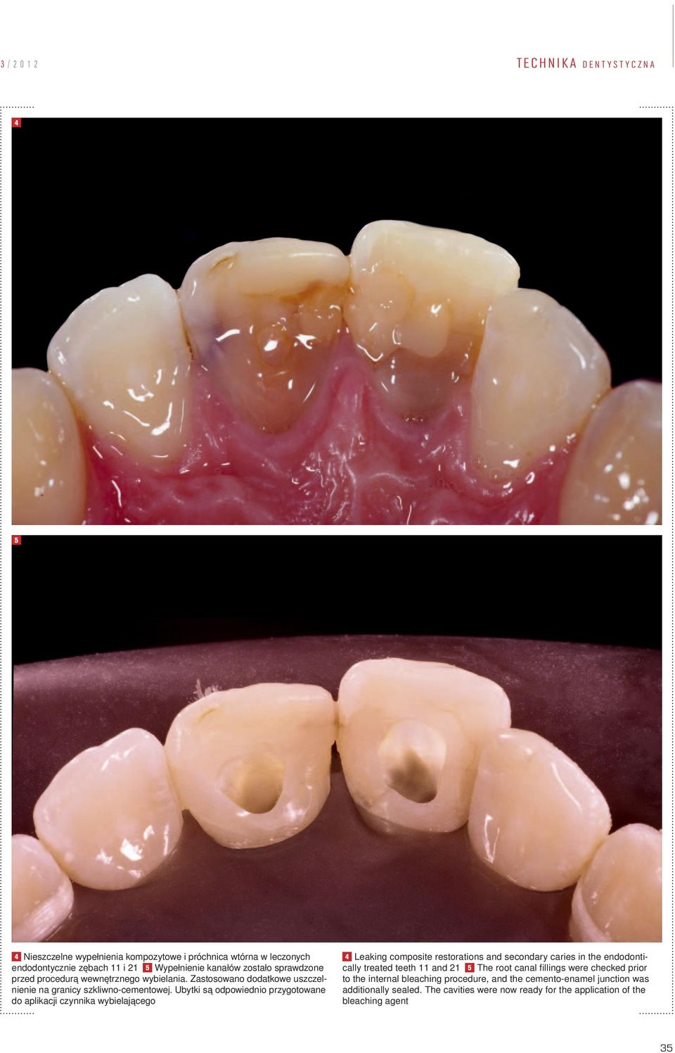 Ubytki są odpowiednio przygotowane do aplikacji czynnika wybielającego 4 Leaking composite restorations and secondary caries in the endodontically treated teeth 11