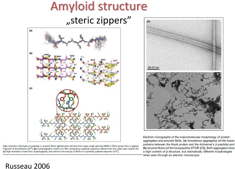 Amyloid