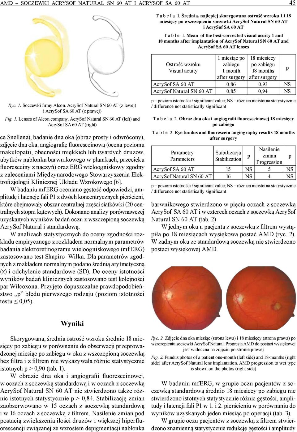 Mean of the best-corrected visual acuity 1 and 18 months after implantation of AcrySof Natural SN 60 AT and AcrySof SA 60 AT lenses Ryc. 1. Soczewki firmy Alcon.