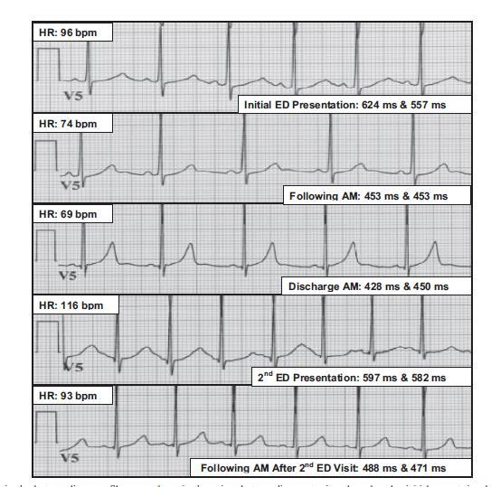 Congenital type 1 long QT syndrome unmasked by a highly caffeinated energy drink (Keith A. Dufendach*, Justin M. Horner, MD, MPH,* Bryan C. Cannon, MD, FHRS, Michael J.